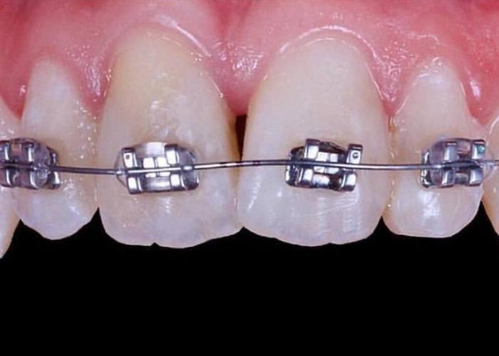 izilaynyery-dly-vyravnivaniya-zubov
