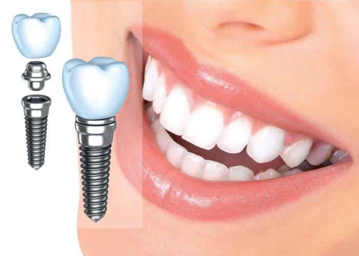 stomatologicheskie-implantanty