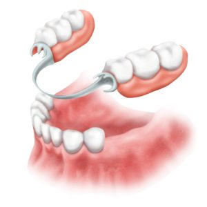 protez-zuba