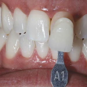 beautiful-smile-and-white-teeth