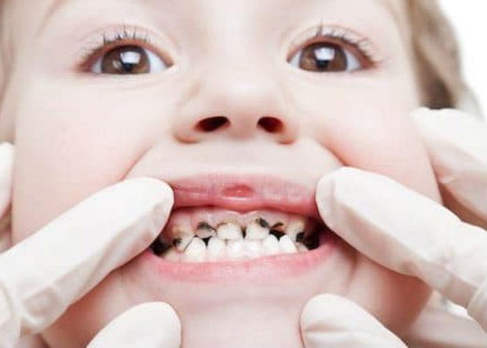 problemnie-zubki